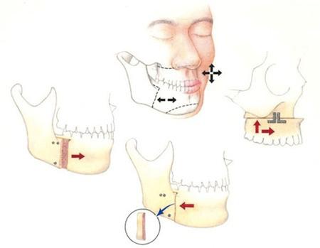 phẫu thuật gọt hàm, phẫu thuật gọt hàm tạo mặt vline, phẫu thuật gọt hàm an toàn, phẫu thuật gọt hàm hiệu quả, phẫu thuật gọt hàm tại hà nội, phẫu thuật gọt hàm tại thẩm mỹ viện, địa chỉ phẫu thuật gọt hàm uy tín , địa chỉ phẫu thuật gọt hàm tạo hà nội