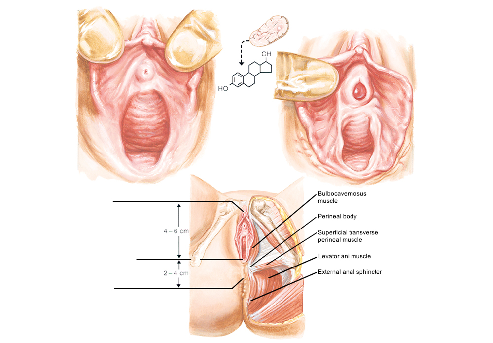 Kết quả phẫu thuật thu nhỏ âm đạo