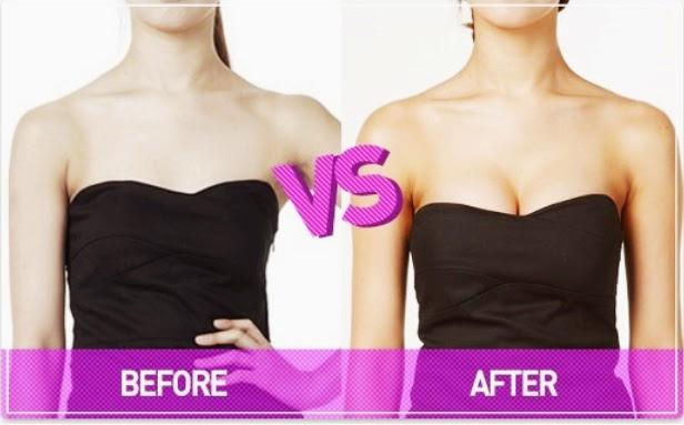 Kết quả nâng ngực bằng mỡ tự thân
