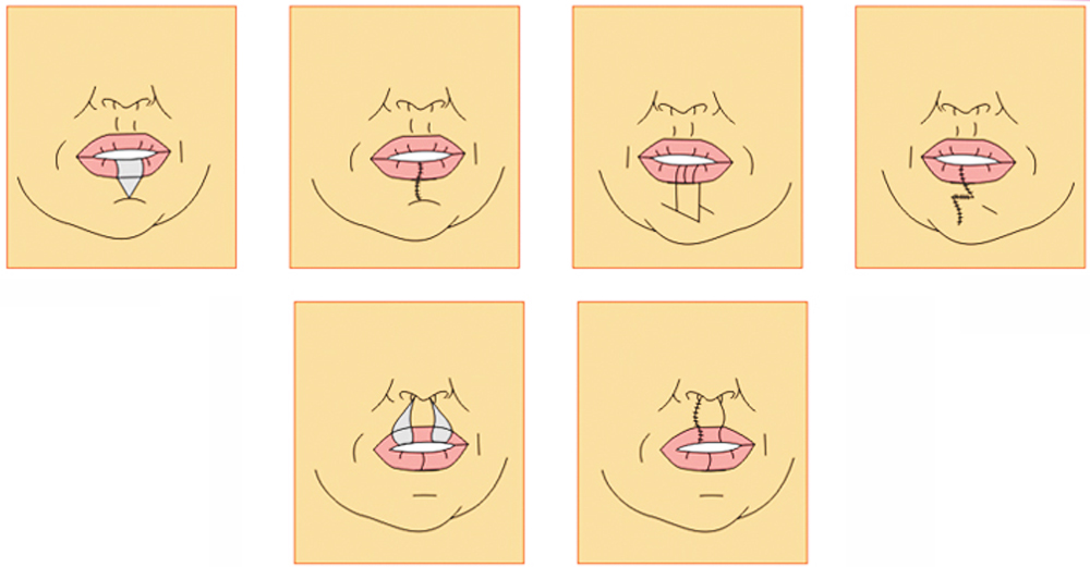 Quy trình phẫu thuật thu gọn môi dày