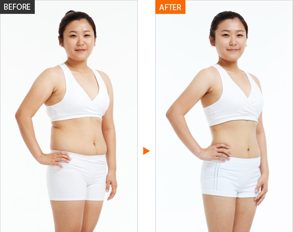 Kết quả giảm mỡ bụng hiệu quả