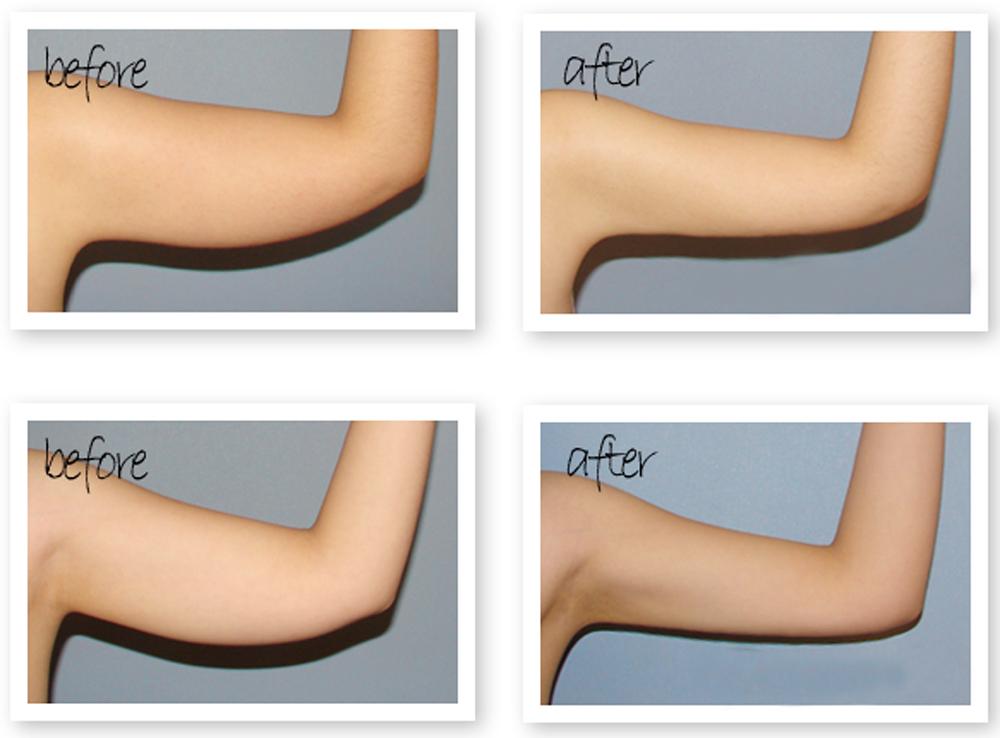 Kết quả giảm mỡ đùi và cánh tay