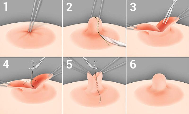 Quy trình tạo hình núm vú bị tụt an toàn