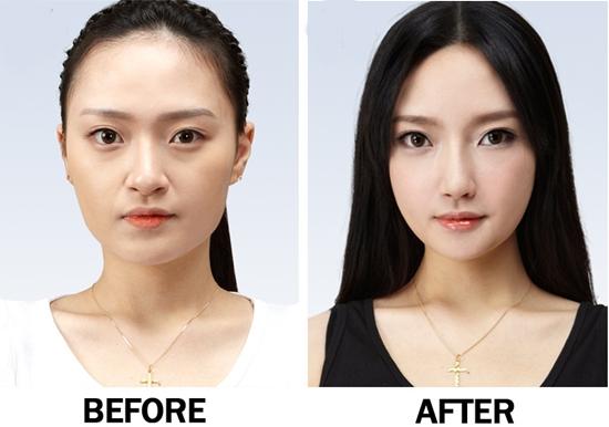 Lấy mỡ mí mắt và cắt da thừa hiệu quả