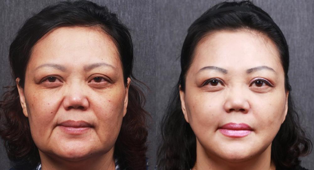 Kết quả phẫu thuật căng da mặt
