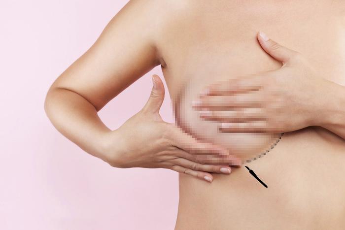 Nâng ngực bằng mỡ tự thân, nâng ngực an toàn