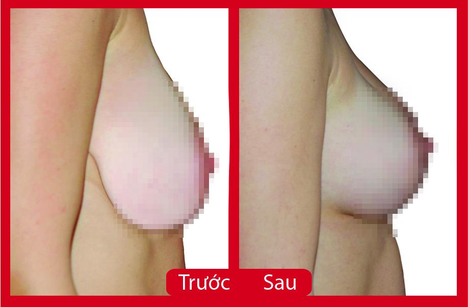 Kết quả phẫu thuật thu nhỏ kích thước ngực