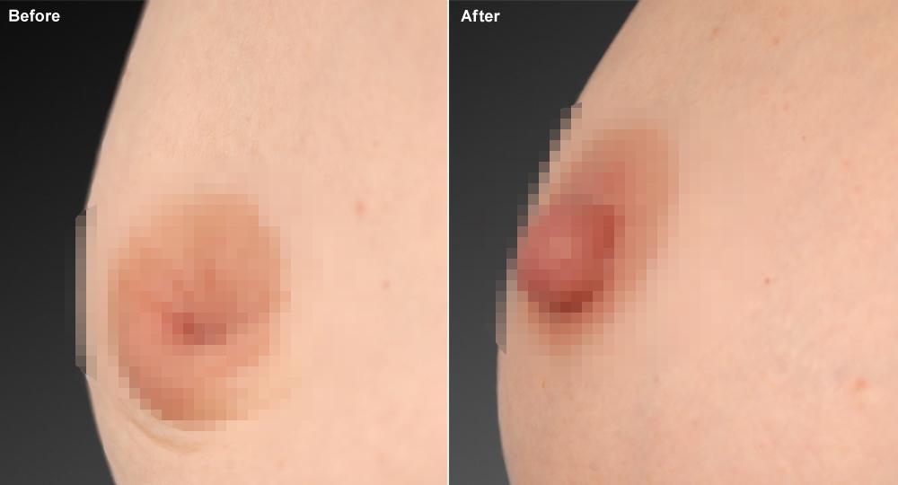 Kết quả tạo hình núm vú bị tụt