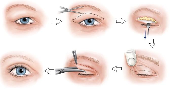 Phẫu thuật cắt mắt hai mí tại hồng ngọc