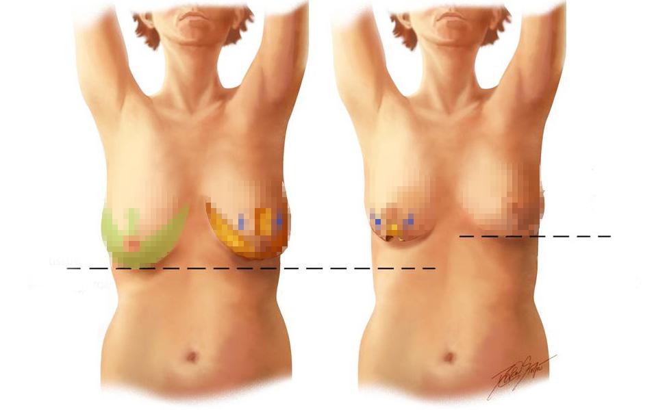 Phẫu thuật thu nhỏ kích thước ngực, thu nhỏ kích thước ngực