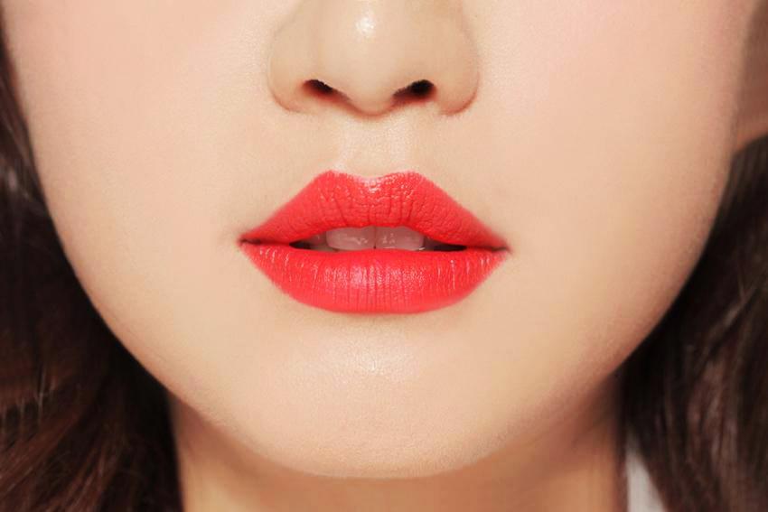 Phẫu thuật thu gọn môi dày an toàn