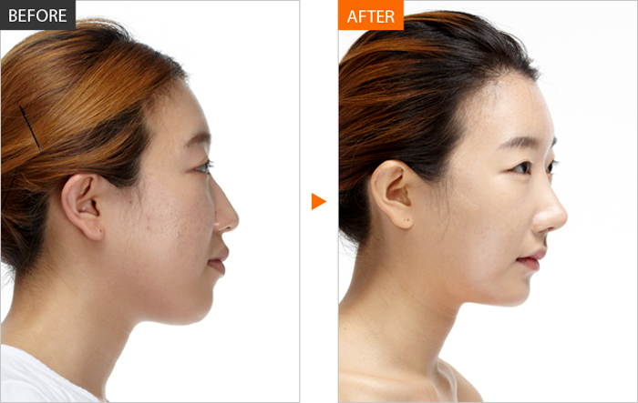 Phẫu thuật sửa mũi khoằm, sửa mũi khoằm