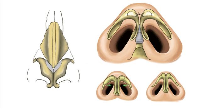 Phẫu thuật tạo hình thành mũi, tạo hình thành mũi