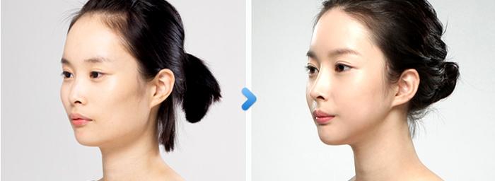 Phẫu thuật thẩm mỹ mũi tẹt, thẩm mỹ mũi tẹt