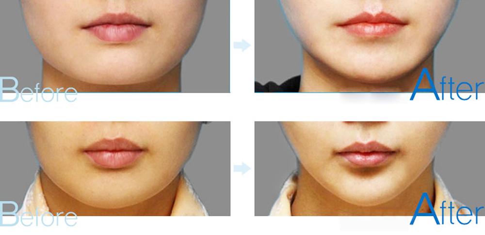 Kết quả phẫu thuật thu gọn môi dày